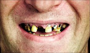 missing_teeth.jpg